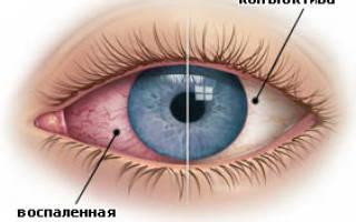 Можно ли потерять зрение при конъюнктивите?