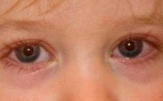 Острый конъюнктивит глаз у детей