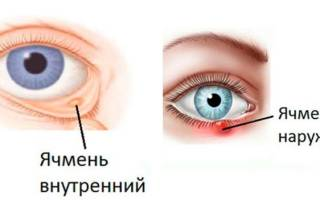 Как вылечить ячмень на глазу на начальной стадии?