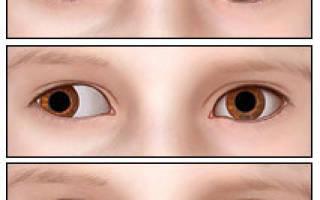 Косоглазие у детей лечение в центре коновалова