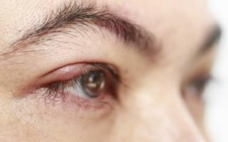 Блефарит сколько дней длится заболевание