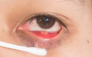 Чем опасен внутренний ячмень на глазу