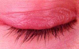 Эритромициновая глазная мазь при блефарите