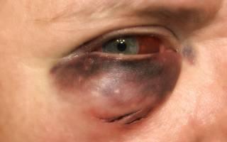 Под глазом появилась припухлость красная и болит