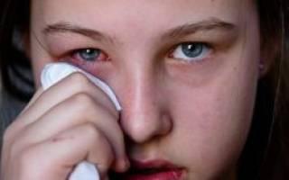 Болят глаза не могу заснуть