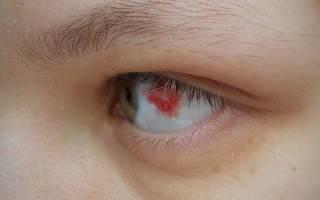 В глазу лопнул капилляр и болит