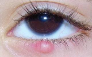 Дырочка на нижнем веке глаза болит