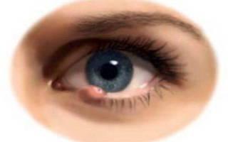 Как быстро снять опухоль с глаза при ячмене?