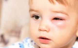Ячмень на глазу как лечить у ребенка 3 года