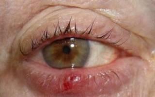 Можно греть ячмень на глазу у ребенка