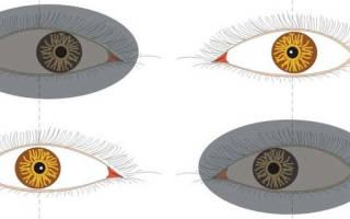 Установочные движения глаз при косоглазии