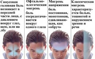 Болит голова в области виска слева и давит на глаз
