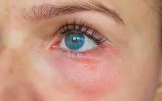 Под глазом красное пятно и болит