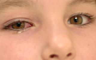 Конъюнктивит у ребенка 13 лет