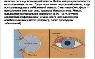 Как избавиться от ячменя возле глаза?