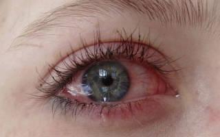 Глаза красные и болят что делать народные средства