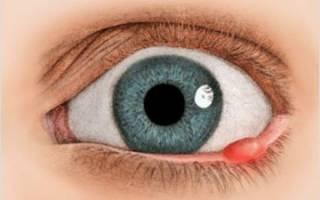 Что такое ячмень под глазом и как его лечить?