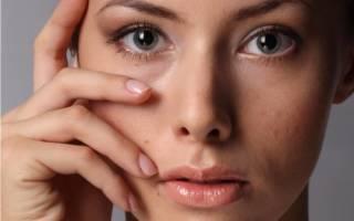 Как понять что ячмень на глазу проходит?