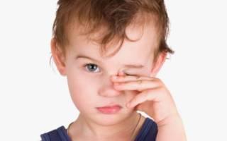 Чем лечить детский конъюнктивит и при нем насморк