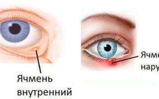 Ячмень на глазу причины эзотерика