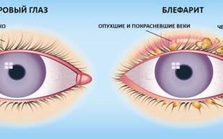 Лечение ячменя на глазу в домашних условиях народными средствами