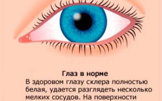 Конъюнктивит после операции на глаза