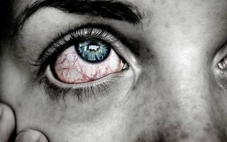 Что делать если покраснел глаз и болит и лезет гной?