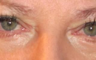 Как снять отек на глазу от ячменя на глазу?
