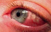 Сколько по времени болят глаза от сварки