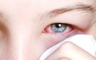 Глаз покраснел и слезится и болит веко опухло несколько дней