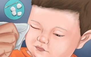 Как промыть глаза ребенку при конъюнктивите?