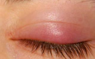 Ангулярный блефарит симптомы и лечение
