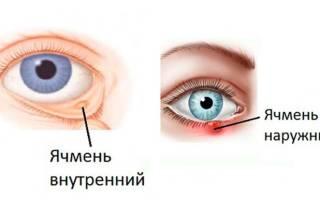 Писяк или ячмень на глазу