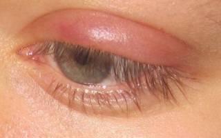Удаление ячменя на глазу хирургическим путем