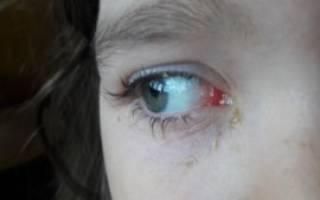 На фоне простуды загноился и покраснел глаз болит