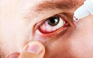 Глазные капли при конъюнктивите у взрослых с антибиотиком