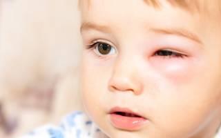Болит глаз весь красный и опух что делать выходит гной