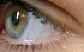 Почему блефарит только на одном глазу?