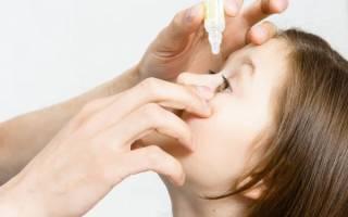 Чем лечить конъюнктивит у ребенка 2 года в домашних условиях
