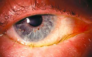 Гонорейный конъюнктивит симптомы и лечение