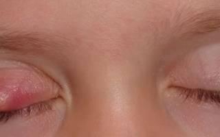 Ячмень внутри на глазу у ребенка как лечить