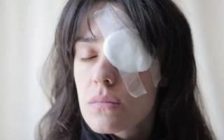 Болит глаз после ожога щелочью