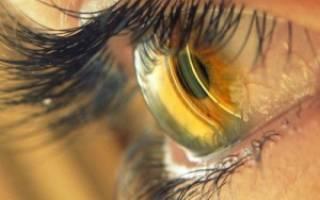 Глаукома болит голова и глаз