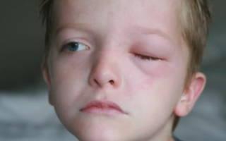 Что такое блефарит глаз у детей?