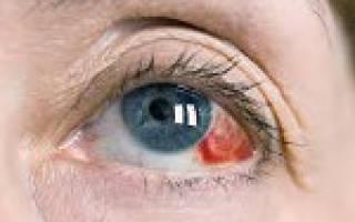 Кровоизлияние в глазу при конъюнктивите