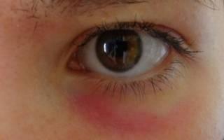 Болеет ребенок красные круги под глазами что это