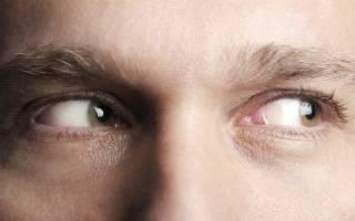 Болят глаза при повороте вправо влево что делать