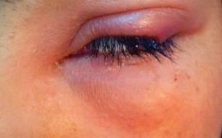 Рецидив ячменя на глазу у ребенка
