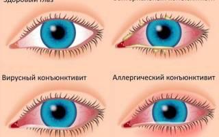 Болит и слезится один глаз особенно при закрытии глаза