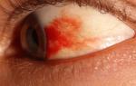 Красное пятно в глазу болит